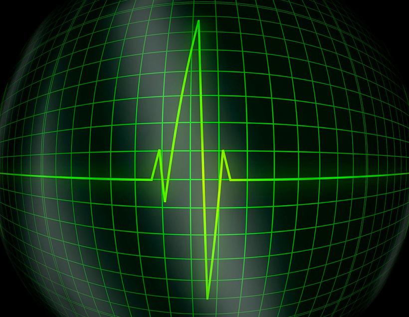 Стэнфордская нейросеть распознаёт аритмии как опытный кардиолог